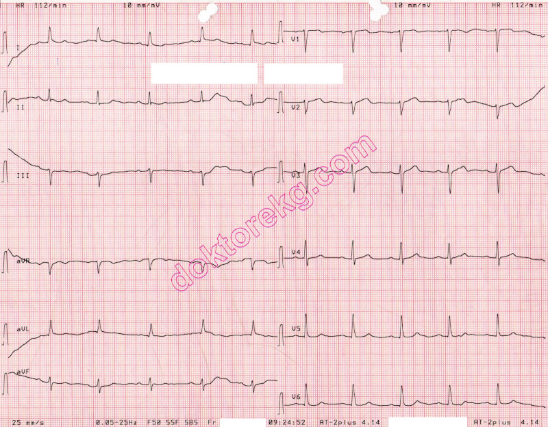 ecg 10a  the above ecg is from a 78 years-old man with coronary artery  disease  it was recorded immediately before triple coronary bypass surgery  + mitral