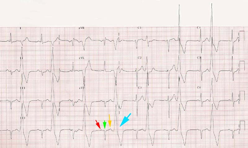 Ventricular Bigeminy Rhythm Ventricular Bigeminal Rhythm