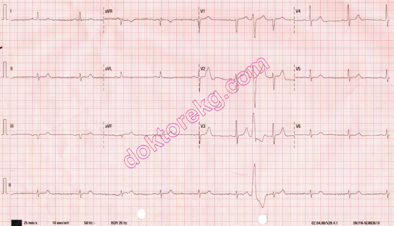 interpolated ventricular premature contraction/systole (vps