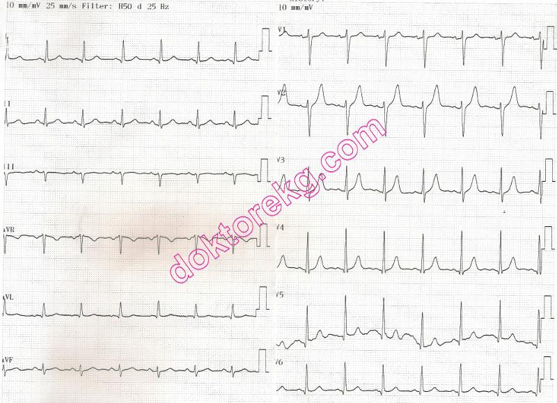 Myocardial: Inferoposterior Myocardial Infarction