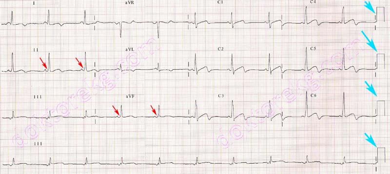 calibration of the electrocardiogram (ecg) - ekg - ecg