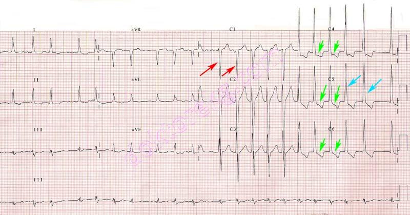 Left Ventricular Hypertrophy Increased Left Ventricular Wall