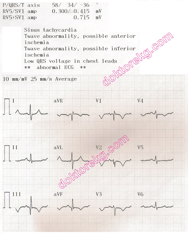 normal t wave