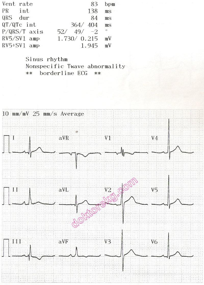 atrial septal defect (asd) - atriyal septal defekt - ekg - ecg