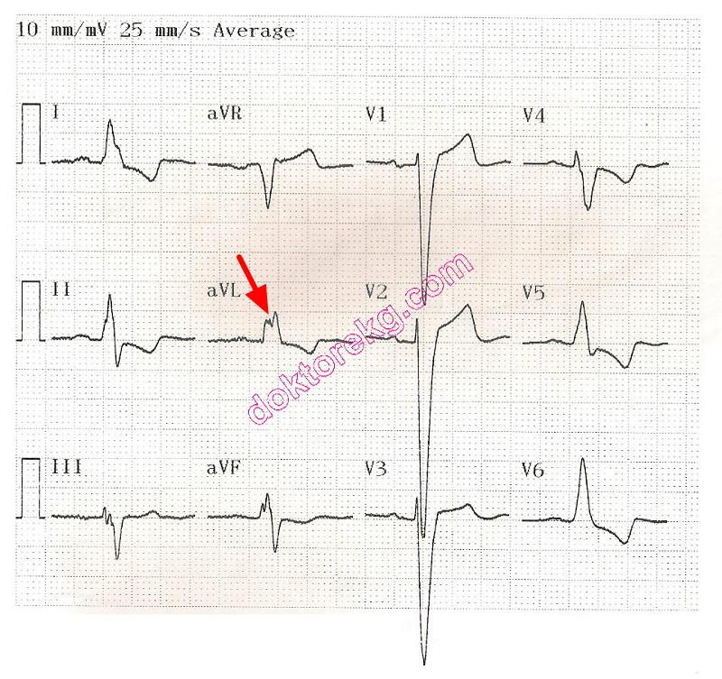 Ventricular Systole on Ekg Left Ventricular Systolic