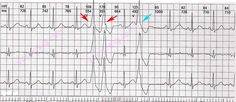 ventriküler couplet ve elektrokardiyografi (ekg ...