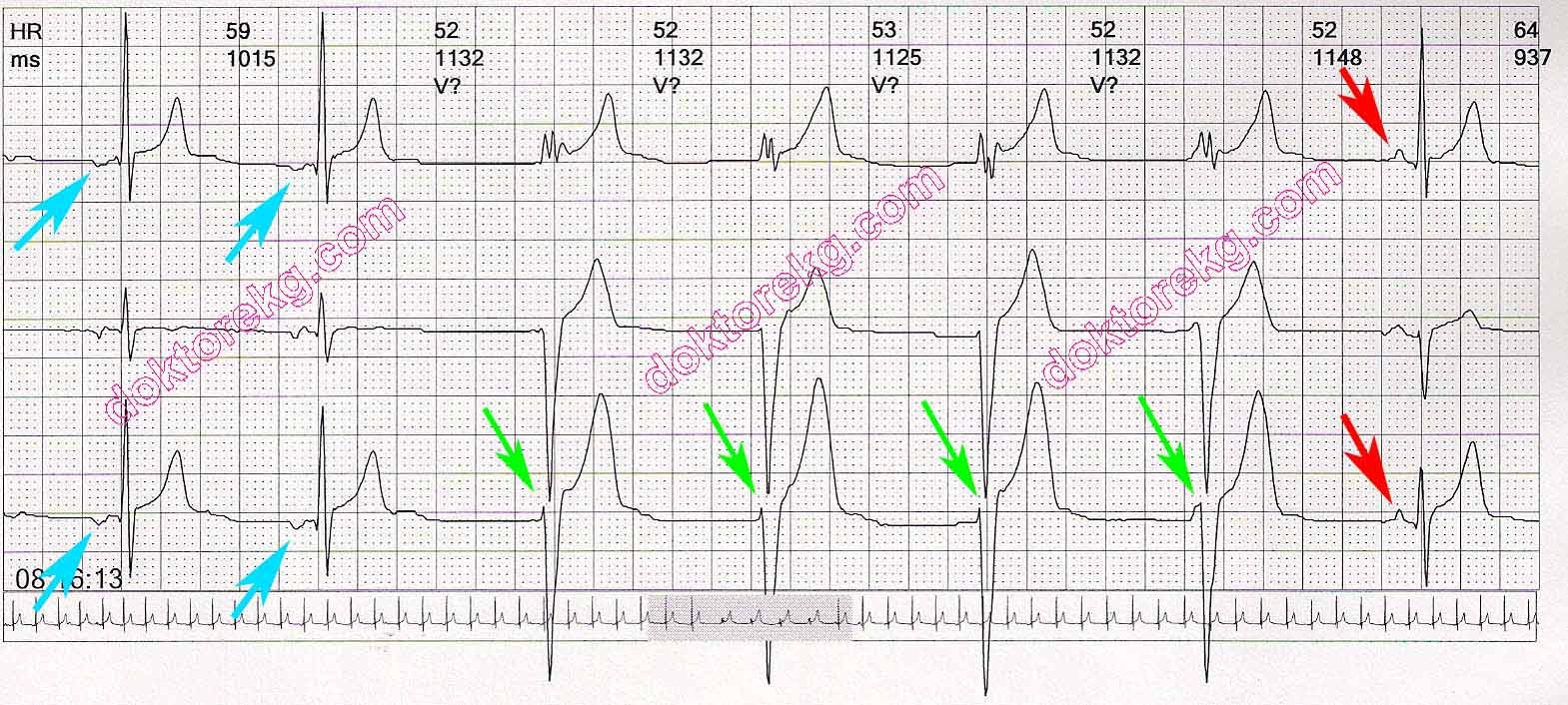 Transition from ectopic atrial rhythm to accelerated for Rhythm by transition