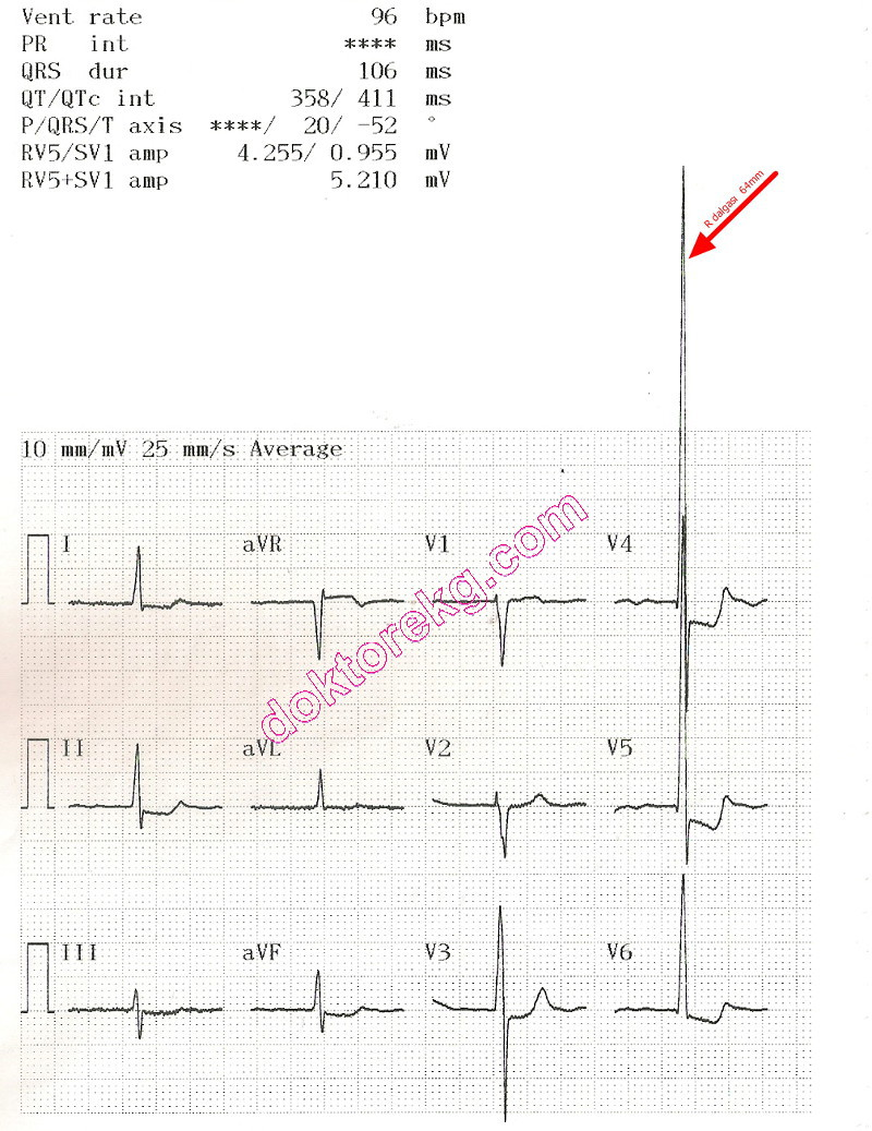 Above Is The Block Diagram For A Simple Ekg The Heart S Electrical