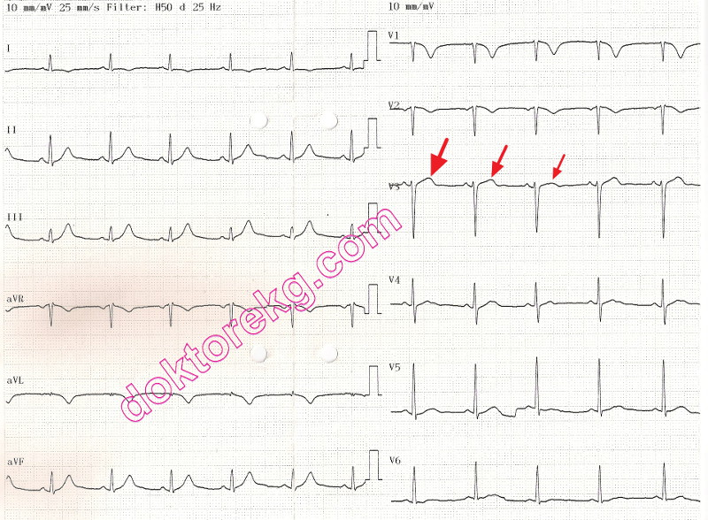 Electrical: Electrical Alternans