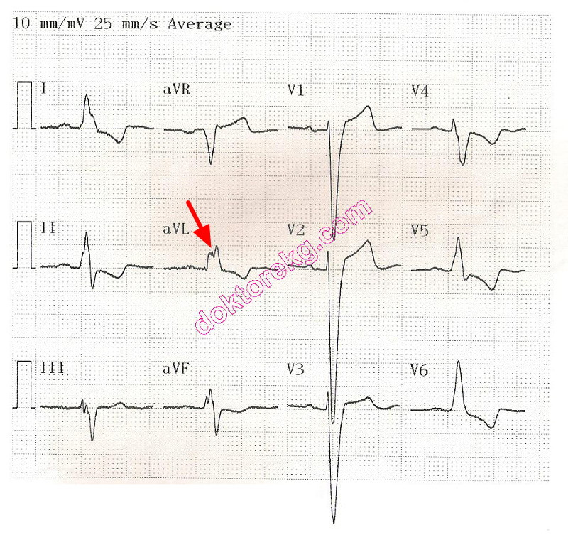 Ventricular Systole on Ekg Left Ventricular Systolic