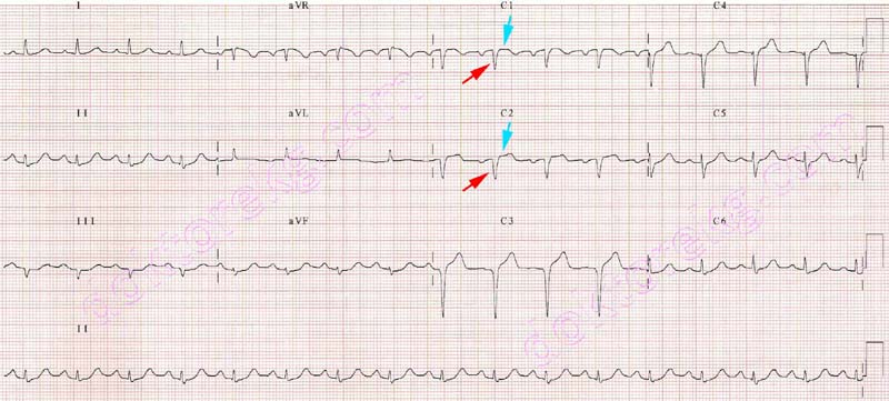 Ekg Kaydi Elektrod Yerlesimi Recording Of The Ecg